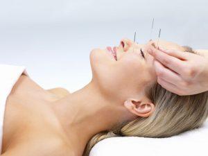 acupuntura en l'eixample de barcelona